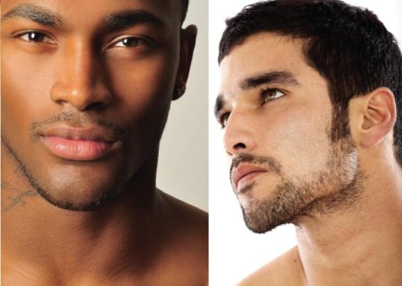 For men cosmetic tattoo vitiligo repigmentation in male for Eyebrow tattoo men